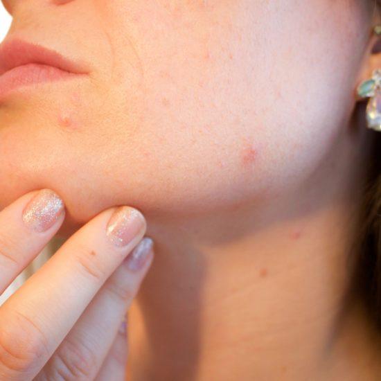 In diesem Beitrag erfahrt ihr, welche Ursachen unserer Erfahrung nach für unreine Haut verantwortlich sein können.